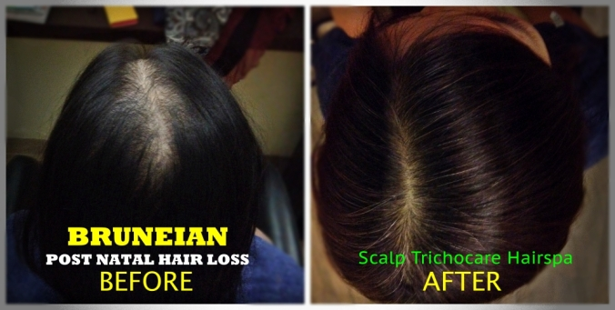 2.0 WEB Post Natal Hair Loss Before vs After