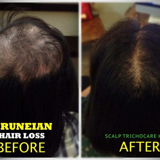 4.0 WEB Hair Loss Before vs After